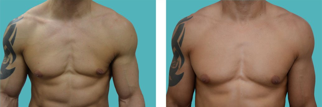 male breast enhancement before and after