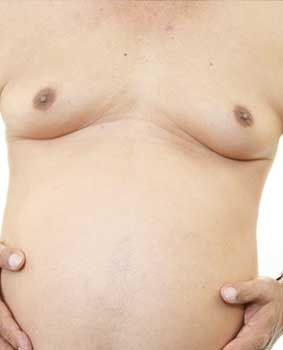 male-breast-reduction-process