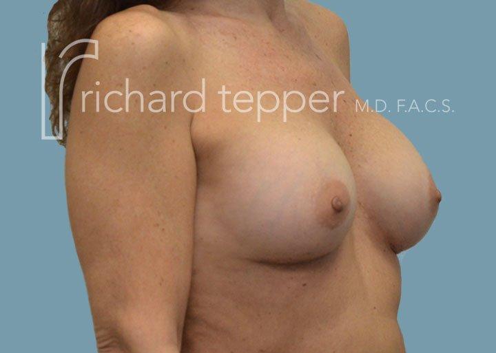 Breast Augmentation Lift Post Surgery