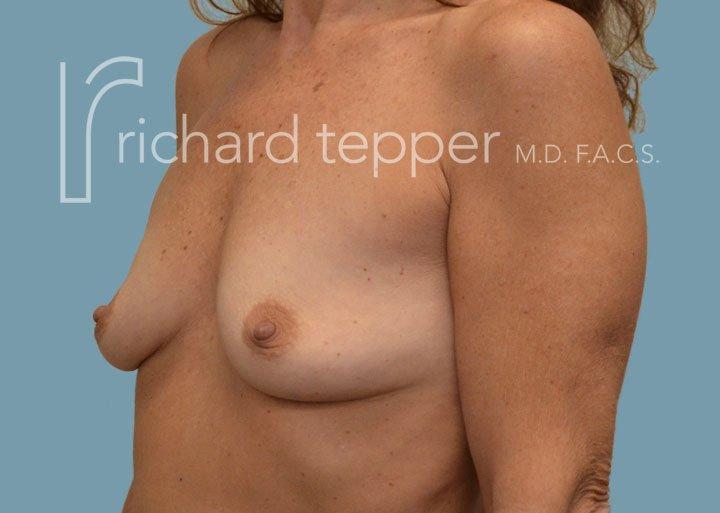 Breast Augmentation Lift Pre Surgery